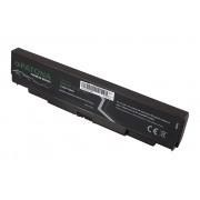 Baterija za IBM Lenovo Thinkpad L440 / L540 / T440p / T540p / W540, 5200 mAh
